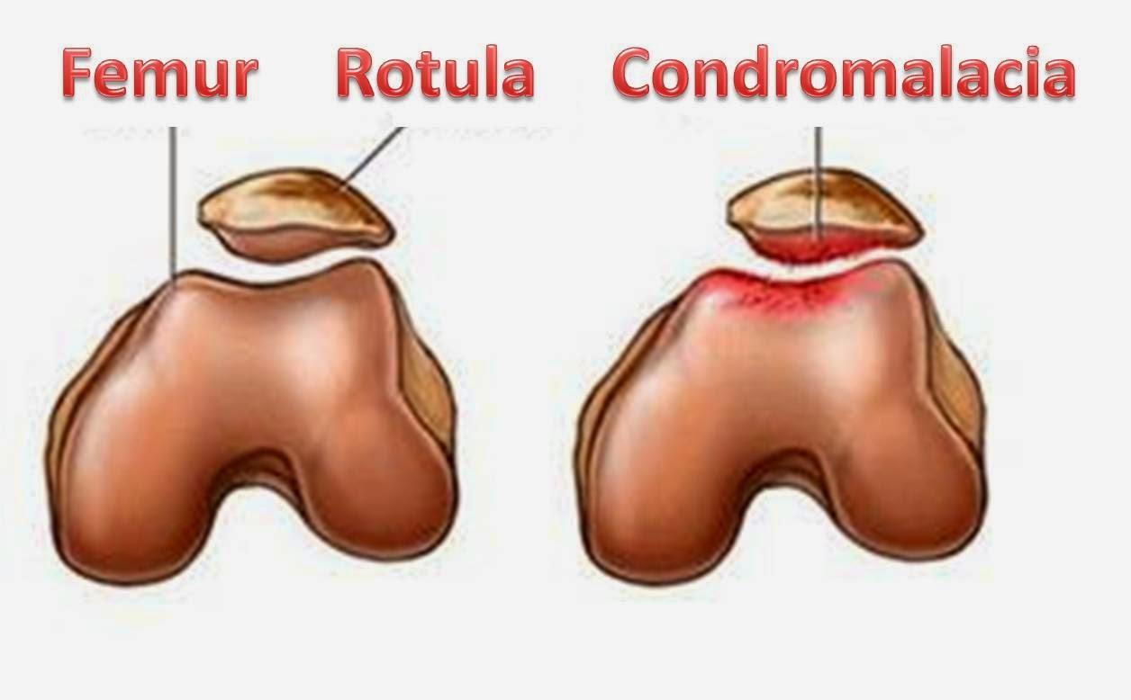 condromalacia-en-el-cartilago
